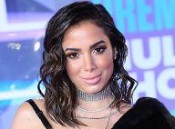Anitta nega novo preenchimento labial e explica: 'Acordei com a boca inchada'