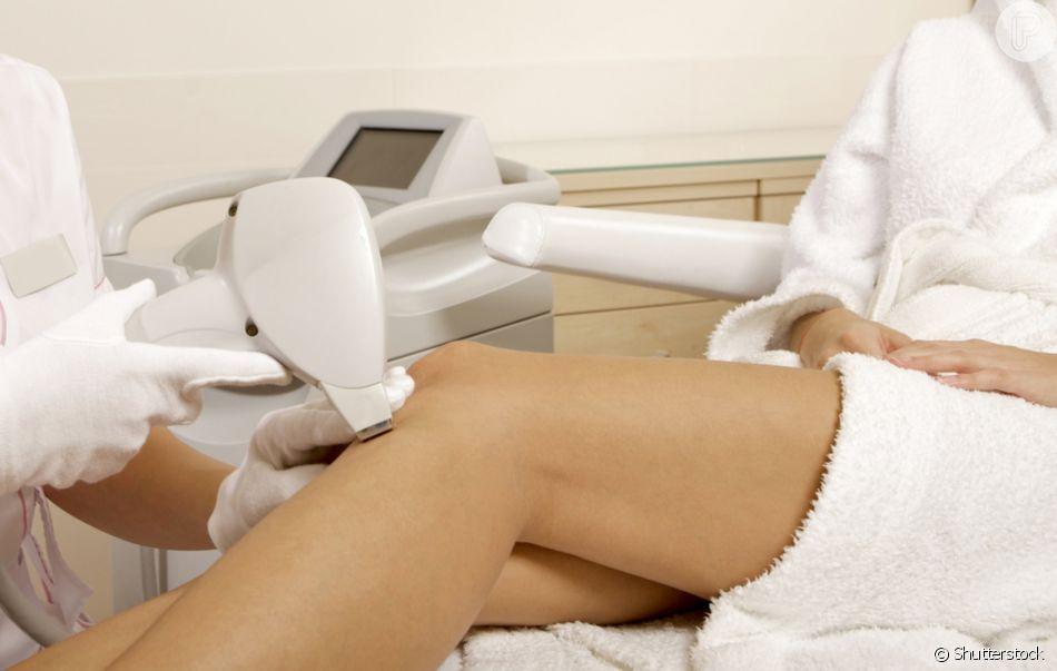 Saiba se a depilação a laser realmente funciona e por que ela acaba com todos os pelos