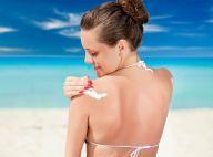 Evite manchas no verão! Especialista revela melhor protetor para precaver marcas
