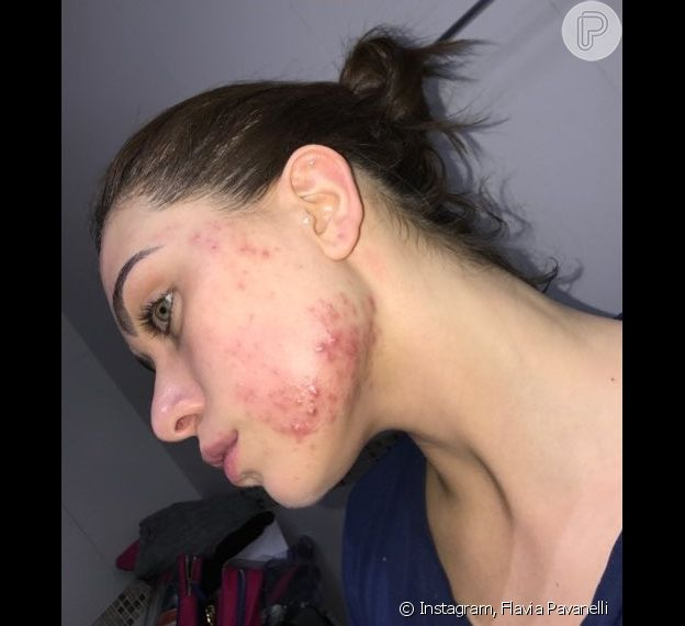 Flavia Pavanelli exibe rosto com espinhas