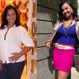 Solange Couto, que perdeu 47kg após uma cirurgia de redução de estômago, precisou passar por uma angioplastia