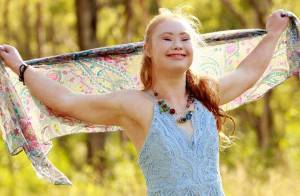 Adolescente com Síndrome de Down realiza sonho e assina contrato como modelo