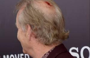 Bill Murray vai a lançamento de filme com a cabeça sangrando. Veja foto
