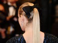 Anos 60 na moda: laço nos cabelos e volumão estão em alta. Veja como usar!