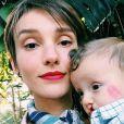Isabel Hickmann contou que não foi fácil aceitar que o filho precisava de cirurgia
