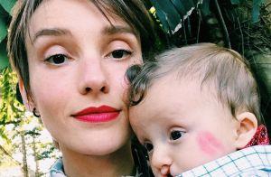 Isabel Hickmann cita dificuldade em aceitar cirurgia no filho com lábio leporino