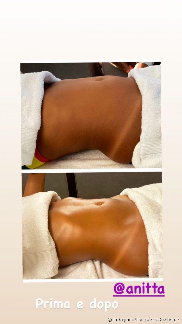 Foto de antes e depois de barriga de Anitta após massagem modeladora
