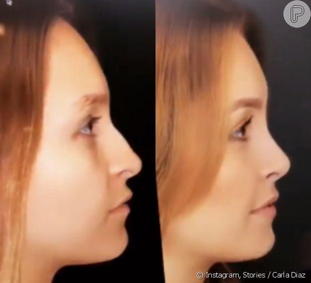 Carla Diaz mostra antes e depois de rinoplastia com Dr. Frederico Keim