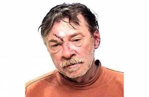 Irmão mendigo de Madonna é agredido e leva pontos após resistir à prisão