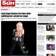 Veja reprodução da calça de Lady Gaga rasgada durante show no Canadá