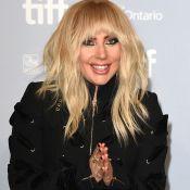 Lady Gaga, fora do Rock in Rio, lamenta internação: 'Não é só dor de quadril'