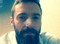 Hugh Jackman é diagnosticado com câncer de pele no nariz novamente