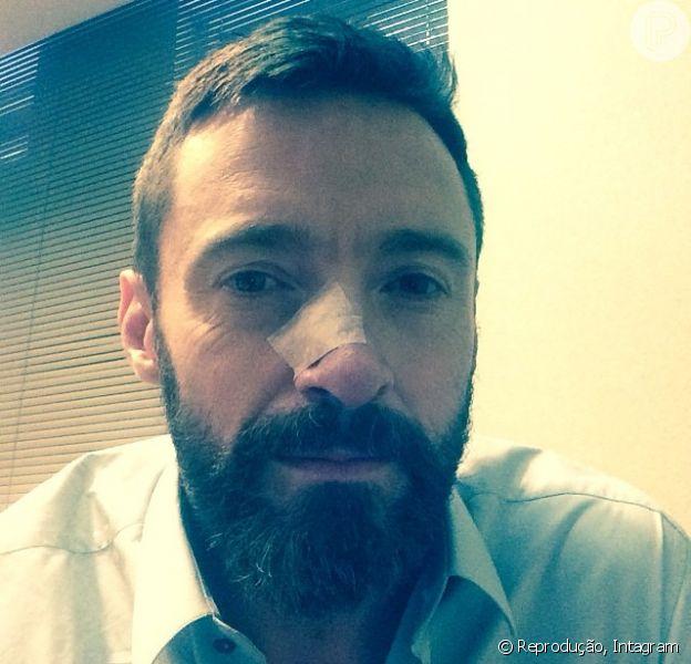 Mais uma vez, Hugh Jackman é diagnosticado com câncer no nariz