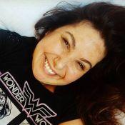 Mariana Xavier exibe melasma causado por anticoncepcional: 'Realidade da vida'