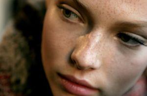 Dermatologista revela tratamentos para acabar com as sardas: 'Peelings e lasers'