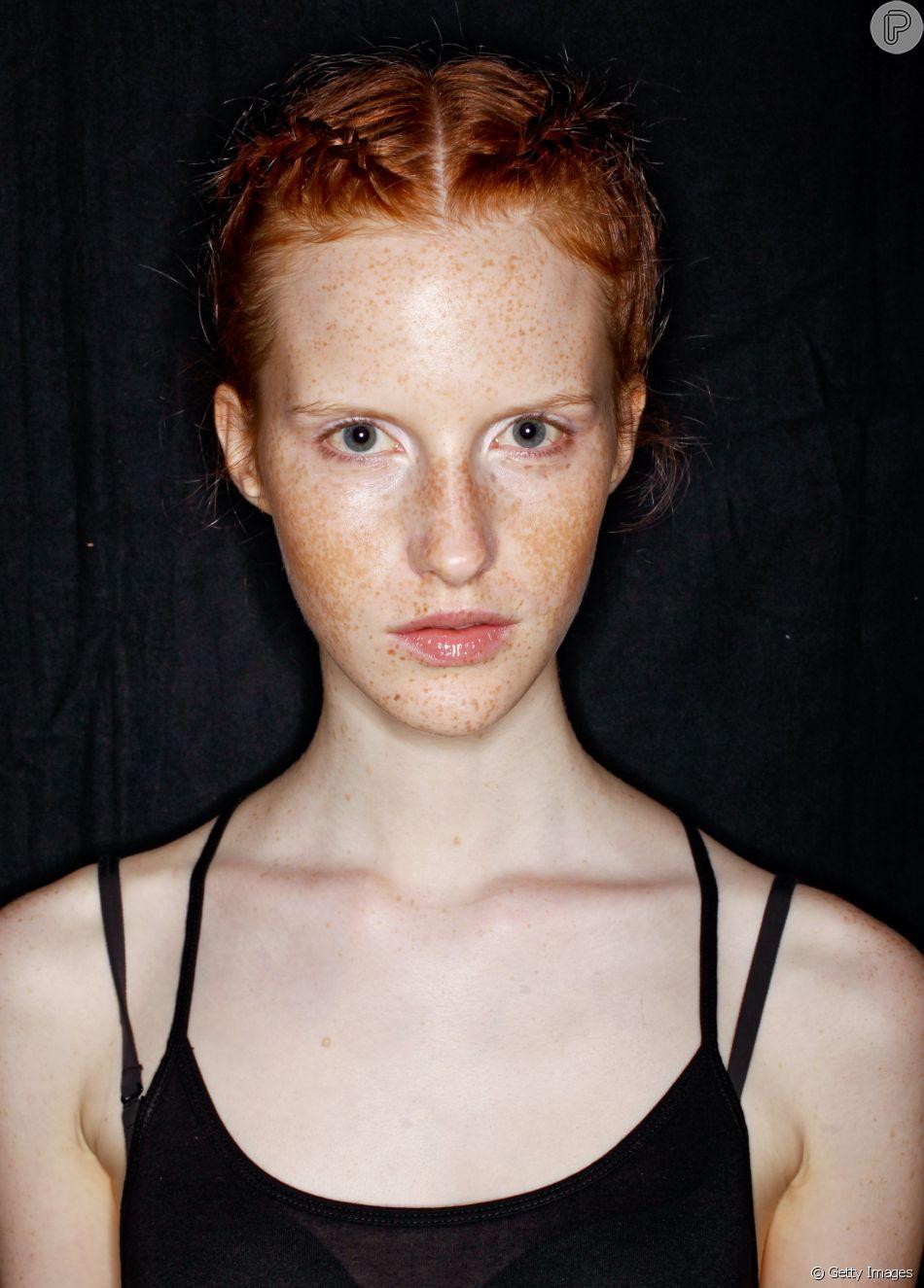 As sardas não são consideradas doenças de pele e, em entrevista para o Purepeople,  Lilia Guadanhim esclarece o que causa as manchas