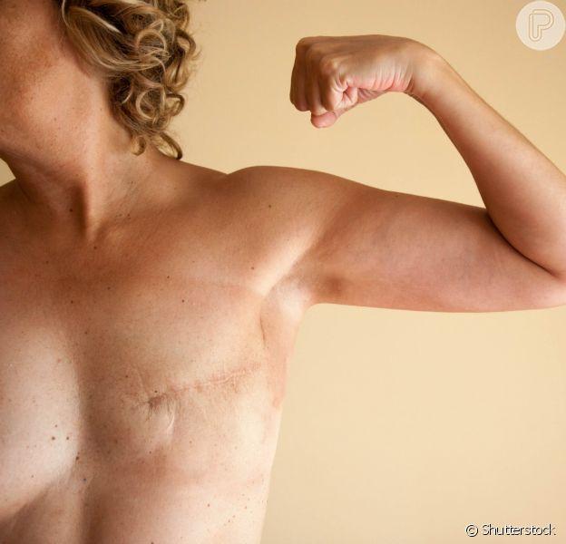 Veja como a reconstrução da mama pode ajudar na autoestima de mulheres que enfrentaram o câncer de mama