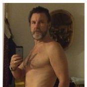 Antonio Calloni, de 'Dois Irmãos', aparece mais magro em foto: 'Perdi 20kg'