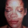 Rihanna foi espancada por seu namorado, Chris Brown, em fevereiro de 2009. O caso foi parar na manchete de jornais e sites especializados. Chris Brown foi condenado 5 anos de liberdade condicional e 180 dias de trabalho comunitário