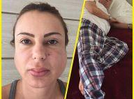 Mulher de Stênio Garcia mostra imagem do casal com caxumba: 'Dor é insuportável'