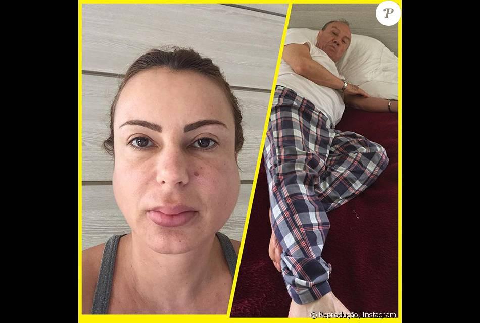 Mulher de Stênio Garcia postou uma foto na qual aparece com caxumba e também mostra o marido debilitado