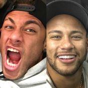 Neymar muda sorriso e adota lente de contato nos dentes: 'Microscopia'. Compare!