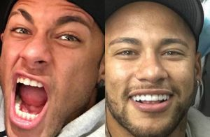 Neymar muda sorriso e adota lente de contato nos dentes   Microscopia .  Compare! 0e4aa0c620