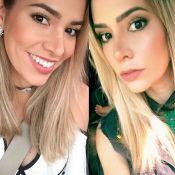 Ex-BBB Adriana Sant'Anna mostra nariz 14 dias após rinoplastia: 'Sutil'