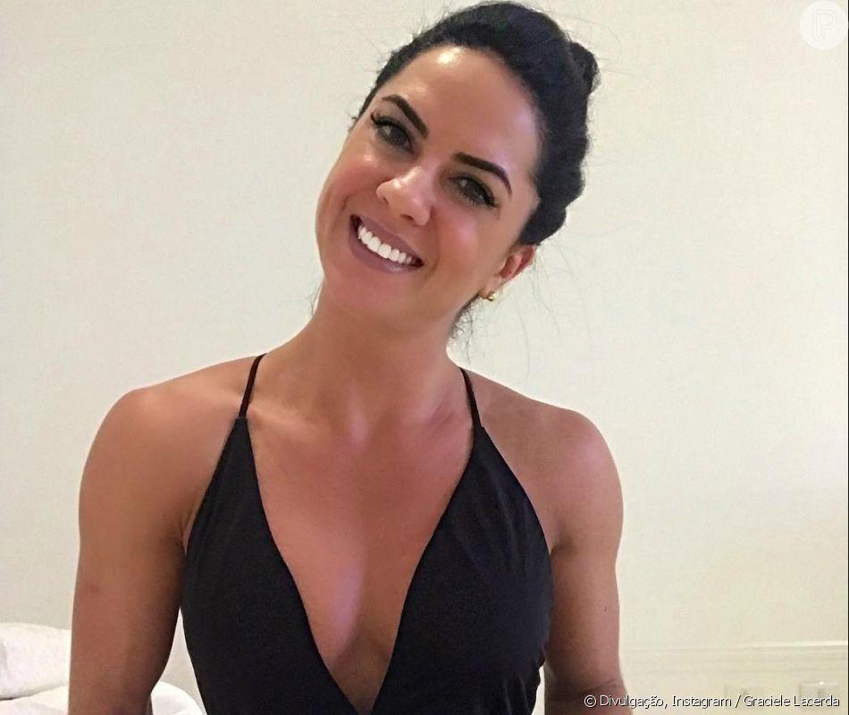 Graciele Lacerda impressiona com antes e depois do rosto: '-10 kg de gordura'