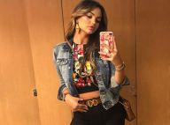 Mais colágeno e menos flacidez: Suzanna Freitas afina silhueta após tratamento