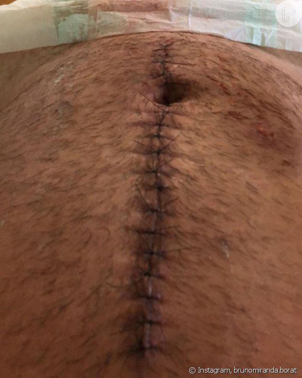 Borat, de 'Amor & Sexo', mostrou pontos na barriga após levar tiro