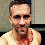 Ryan Reynolds aparece com rosto ensanguentado no set de 'Deadpool'