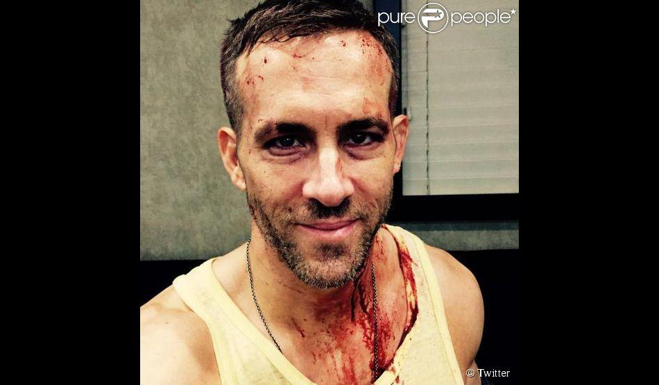 Ryan Reynolds divulgou uma foto com o rosto manchado de sangue cenográfico durante as filmagens de 'Deadpool'