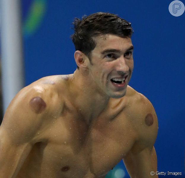 Michael Phelps está com manchas vermelhas pelo corpo porque, antes de competir na Olimpíada Rio 2016, recorre a uma técnica chamada ventosa para amenizar a dor