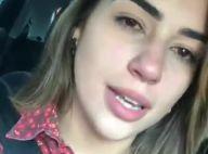 Ex-BBB Vivian surge com rosto inchado após crise alérgica: 'Estou podre'. Vídeo!