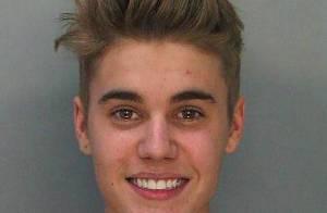 Justin Bieber deve fazer acordo para retirar as três acusações de sua prisão