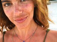 Mariana Goldfarb explica mancha no rosto após postar foto sem make: 'Melasma'