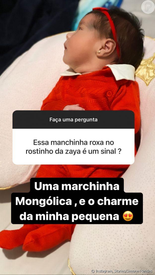 Simone responde internauta sobre mancha roxa no rosto da filha