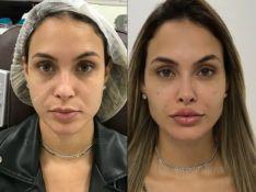 Gabi Martins, Naiara Azevedo, Rafaella Santos e mais famosos adeptos da harmonização facial. Veja lista!