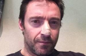 Hugh Jackman revela estar com câncer de pele: 'Use protetor solar'