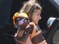 Filha de Giovanna Ewbank, Títi é clicada com tampão no olho: 'Não fez cirurgia'