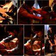A cicatriz foi provocada durante uma briga com Laerte (Guilherme Leicam / Gabriel Braga Nunes) na juventude
