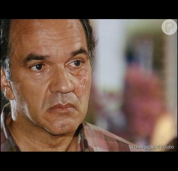 Em entrevista ao colunista de TV Flávio Ricco, publicada nesta terça-feira, 15 de abril de 2014, Manoel Carlos afirmou que Virgílio (Humberto Martins), de 'Em Família', pode fazer outra cirurgia no rosto para tentar remover sua cicatriz