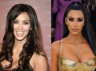 Harmonização orofacial: o procedimento que mudou os traços de Kim Kardashian