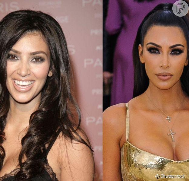 Harmonização orofacial: Kim Kardashian mudou muito com vários procedimentos de 2006 até 2019