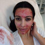 Kim Kardashian mostra o rosto coberto de sangue após procedimento estético