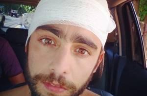 Pedro Scooby, marido de Luana Piovani, leva oito pontos na cabeça após acidente