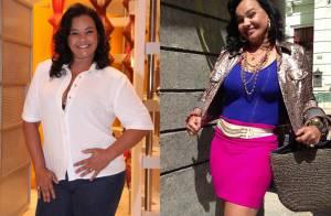 Após perder 32 kg com redução de estômago, Solange Couto quer operar seios