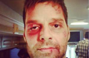 Ricky Martin publica foto com o rosto todo machucado e assusta fãs no Instagram