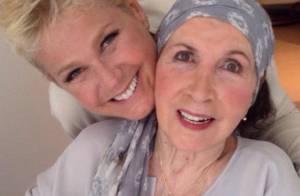 Xuxa Meneghel faz post sobre a mãe, dona Alda, e assusta fãs: 'Ela morreu?'